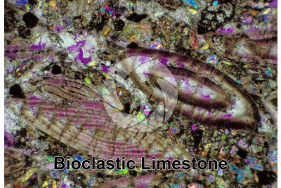 Bioclastic Limestone. Fossil. Thin section in plane polarized light. 32X