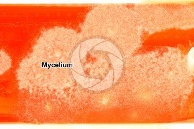 Trichophyton sp. Dermatomycosis. In vitro culture