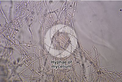 Trichophyton sp. Dermatomycosis. 500X