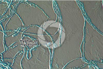 Trichophyton mentagrophytes. Dermatomycosis. 500X