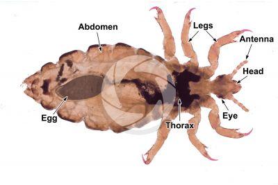 Pediculus humanus capitis. Head louse. Pediculosis. Ventral view