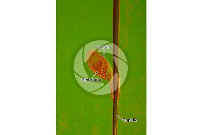 Pediculus humanus capitis. Pidocchio del capo. Pediculosi. Lendine. 25X