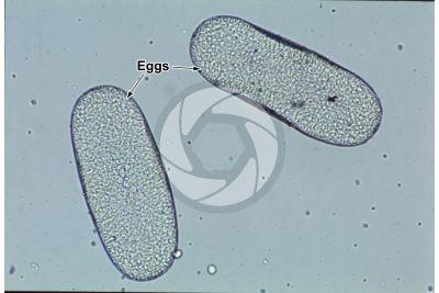 Tunga penetrans. Chigoe flea. Tungiasis. 100X