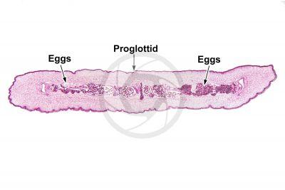Taenia solium. Tapeworm. Taeniasis. Transverse section. 5X