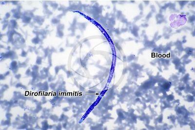 Dirofilaria immitis. Dirofilariasis. 500X