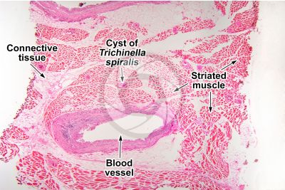 Trichinella spiralis. Trichinellosis. Longitudinal section. 32X