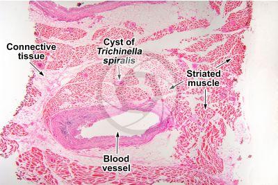 Trichinella spiralis. Trichinellosis. Longitudinal section. 32X