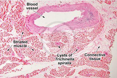 Trichinella spiralis. Trichinellosis. Longitudinal section. 64X