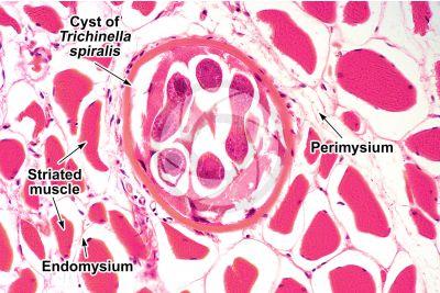 Trichinella spiralis. Trichinellosis. Longitudinal section. 250X