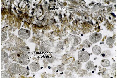 Entamoeba histolytica. Amoebiasis. 250X