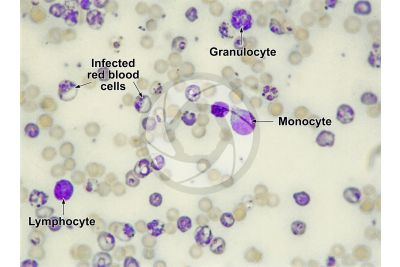 Plasmodium berghei. Malaria. 500X